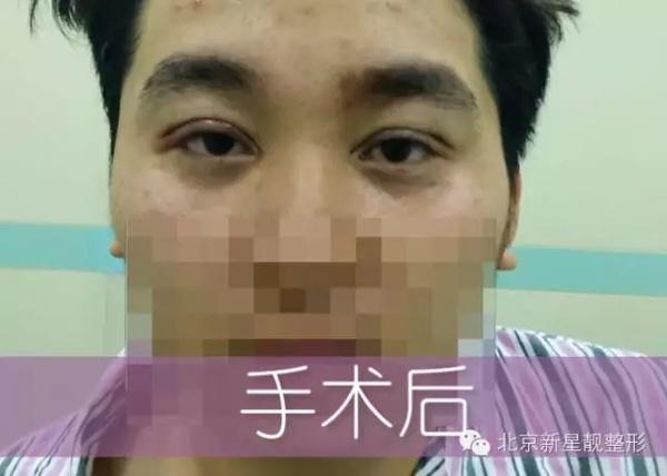 新星靓定制整形    双眼皮手术真人案例 - 北京新星靓整形医院 - 北京新星靓整形美容医院